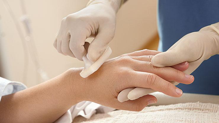 Chlorhexidine Gluconate Chloraprep Skin Prep Bd