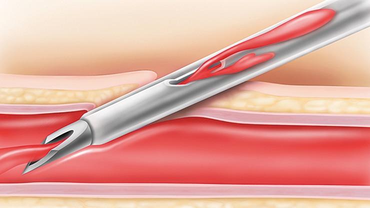 Bd Nexiva Closed Iv Catheter System Bd