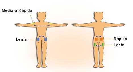 como inyectar esteroides en el biceps